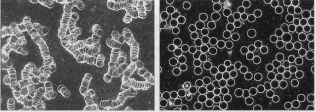 На лівій фотографії кров пацієнта, що приймає антитромбні препарати (тенденція до склеювання тромбоцитів залишається). Права фотографія демонструє кров пацієнта, що приймає іонузовану воду